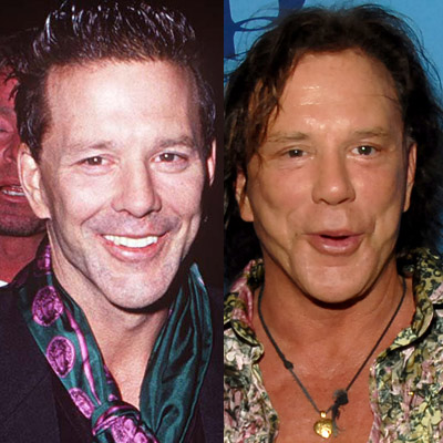 mickey-rourke-bad-plastic-surgery